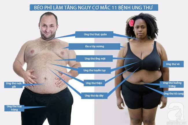 beo-phi-tang-nguy-co-ung-thu-1493181447917